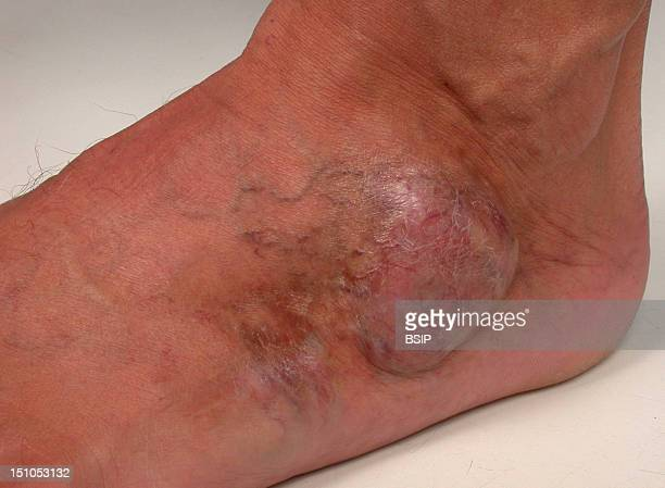 Darier Ferrand's Tumor On The Left Foot