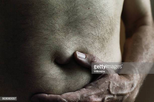 dark man umbilical hernia bulge - hernia stock pictures, royalty-free photos & images