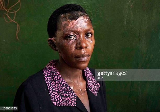 Darlison Kobusingye an acid attack victim poses in Kampala's Mulago hospital on January 4 2012 Darlison and her husband Joseph Muganizi a local...