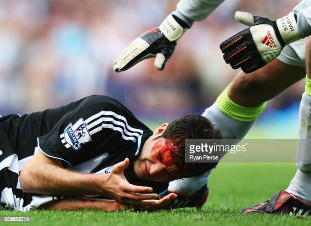 David Edgar of Newcastle United looks at his hand as blood pours from a cut during the Barclays Premier League match between West Ham United and...