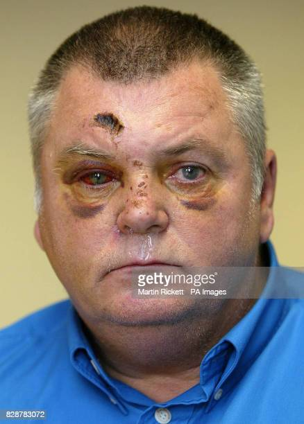 David Hamilton during a press conference at Longsight police station, Manchester, after being attacked by two men in the early hours of Saturday...