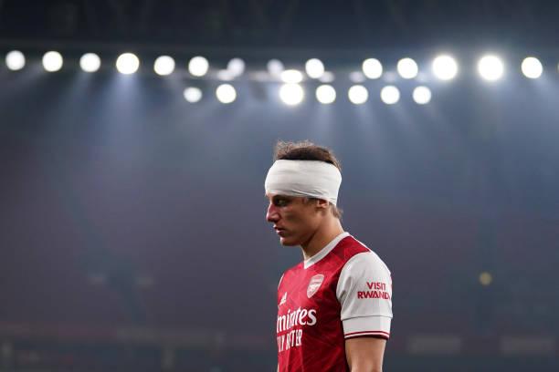 GBR: Arsenal v Wolverhampton Wanderers - Premier League