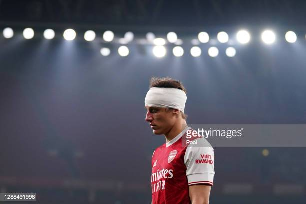 David Luiz of Arsenal looks on after a collision with Raul Jimenez of Wolverhampton Wanderers during the Premier League match between Arsenal and...