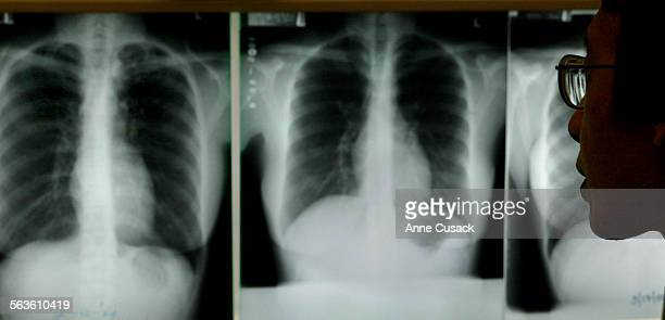 Dcotor Alvin Chin examines X–rays of a tuberculosis patientThe Tuberculosis Clinic at Central Health Center in dowtown Los Angeles test for TB using...