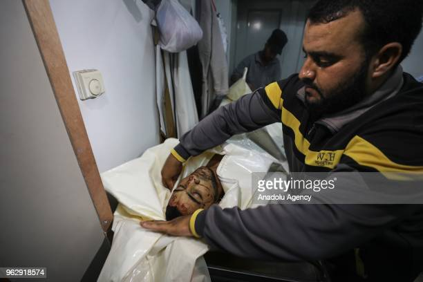 A dead body of a Palestinian who was killed in an Israeli shelling of the southern Gaza Strip is being brought to the European Hospital of Khan Yunis...