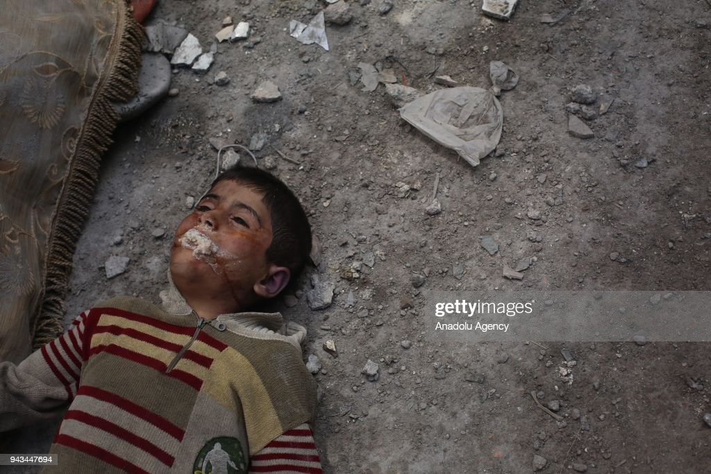 Victims of alleged gas attack in Eastern Ghouta : News Photo