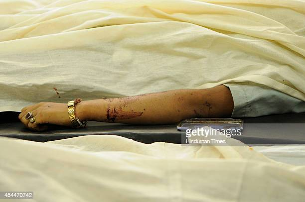Dead body of one of the four employees of Motherson Company who were killed in an accident lying on bed in the district hospital on September 1 2014...