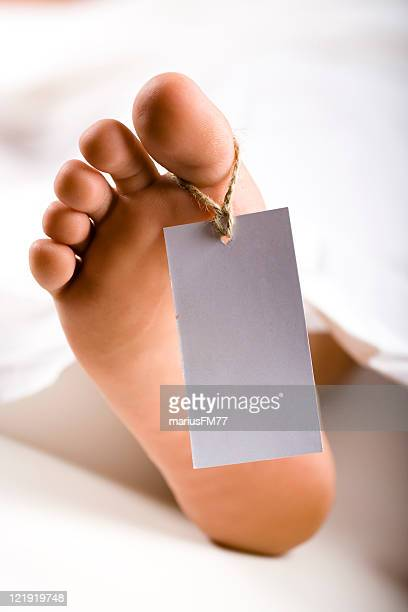 dead body - female autopsy photos stock photos and pictures