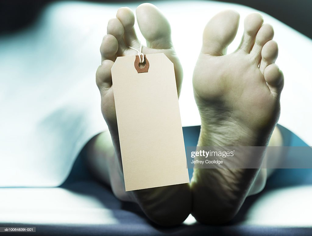 Dead person on autopsy table with name tag on toe, low section : Foto de stock