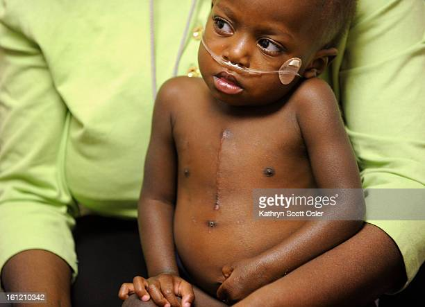 Deborah's scar from heart surgery is visible on her chest After a grandfather in Uganda began to search for help for his granddaughter who was born...