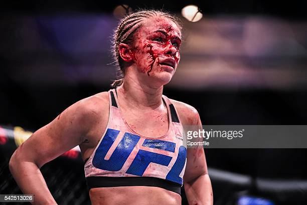 December 2015; Paige VanZant at the end of the second round during her strawweight bout against Rose Namajunas. UFC Fight Night: VanZant v Namajunas,...