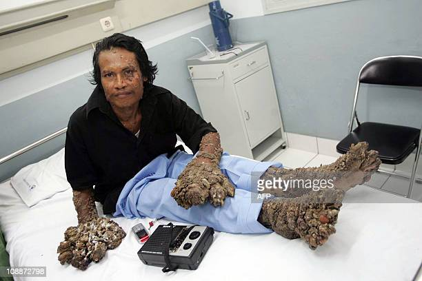 Dede Koswara dubbed Tree Man sits on his bed at a hospital in Bandung on February 9 2009 An Indonesian dubbed Tree Man because of massive barklike...