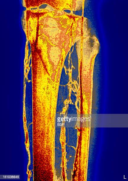 Deep Vein Thrombophlebitis Phlebography Of The Left Calf In Front View Thrombophlebitis Is An Inflammation Of The Veins Associated To A Thrombosis...