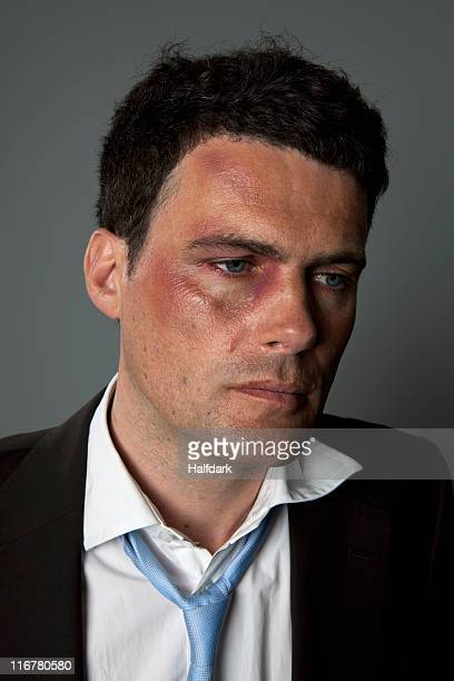 a defeated businessman with bruises - black eye stock pictures, royalty-free photos & images