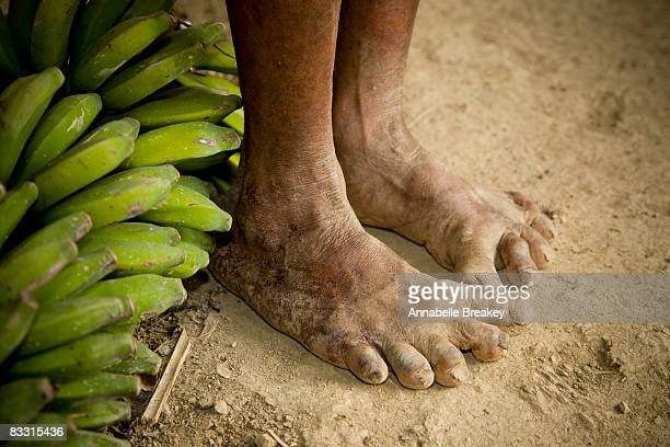 Deformed feet with bananas