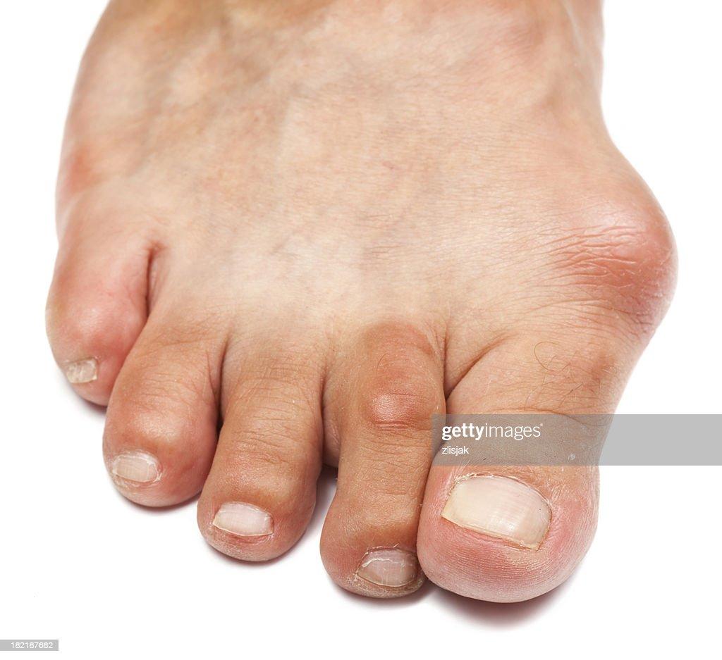 Deformed Foot  - Bunion : Stock Photo