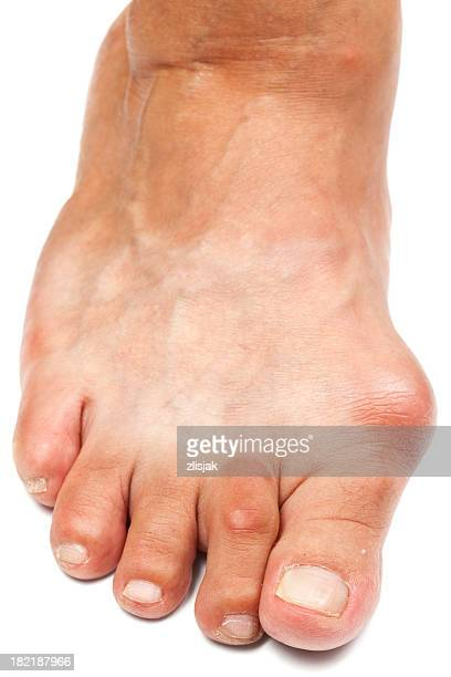 Deformed Foot - Bunion