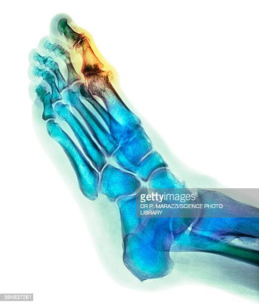 degenerative foot deformation, x-ray - bones stock photos and pictures