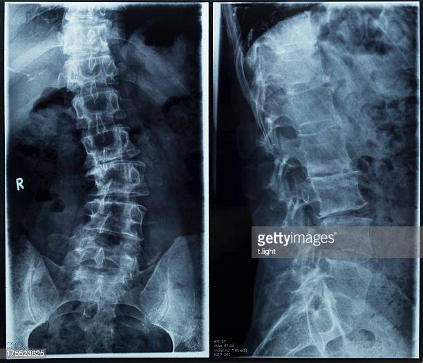 degenerative scoliosis - scoliosis stock photos and pictures