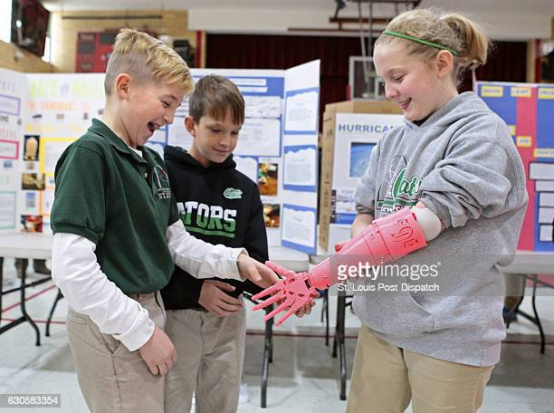 Delanie Gallagher right 10 of Spanish Lake shakes hands with classmate Michael Gallaway of St Louis using her new robotic prosthesis at Gateway...