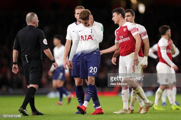 Dele Alli of Tottenham Hotspur reacts after being hit by a water bottle during the Carabao Cup Quarter Final match between Arsenal and Tottenham...