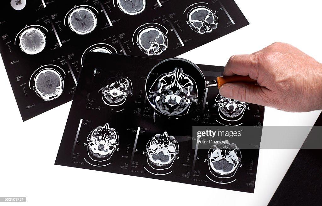 Dementia bran scan research : Stock Photo