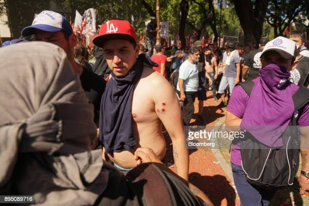 A demonstrator displays rubber bullet wounds during protests against pension reforms in Buenos Aires Argentina on Monday Dec 18 2017 Argentina's...