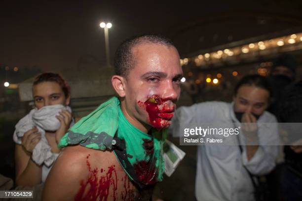 A demonstrator is seen with a foreign object in his face during clashes with riot police in a protest against bus fare price hikes June 20 2013 in...