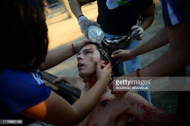 TOPSHOT A demonstrator reached by a pellet is assisted during a protest against the government of Chilean President Sebastian Pinera in Santiago on...