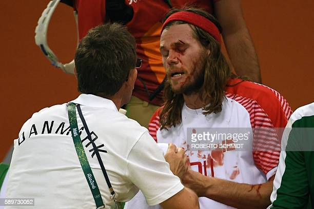 Denmark's left back Mikkel Hansen is treated by nedical staff as his eyebrow bleeds during the men's preliminaries Group A handball match France vs...