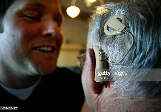 Dennis Chards with two Bionic ear implants on the left a prototype developed by Graeme Clark of the Bionic Ear Institute at Melbourne University in...