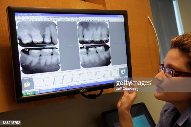 A dental assistant looking at an xray in a periodontitis office in Miami