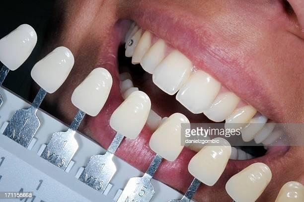 Dental bleaching treatment