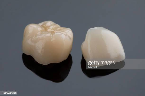 dental ceramic crowns - molar stock pictures, royalty-free photos & images