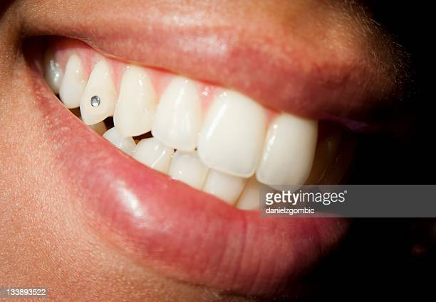 Diamond Teeth Stock Pictures Royalty Free Photos Images Getty