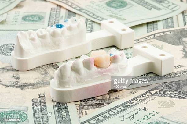 dental costs concept - crown molding stock photos and pictures
