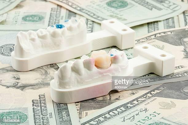 dental costs concept - crown molding stockfoto's en -beelden