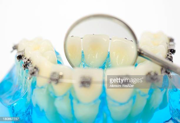 dental hygiene, dentures with fixed braces and a dental mirror - techniker stock pictures, royalty-free photos & images