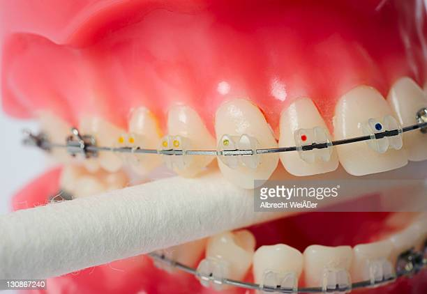 dental hygiene, dentures with fixed braces biting on a cotton bud - techniker stock pictures, royalty-free photos & images
