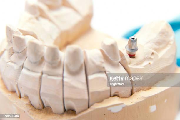 Implante dentário modelo