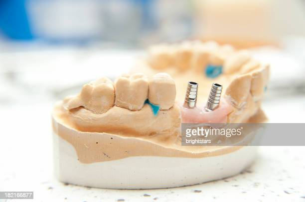 dental implant model - implant stock photos and pictures