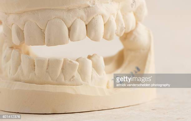dental implant. mould of the jaw. - crown molding stockfoto's en -beelden