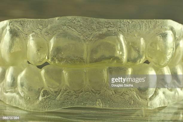 Dental Insert for Human Teeth
