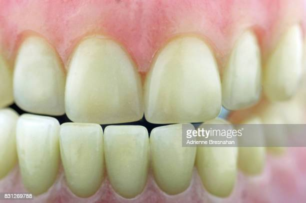 dental model of teeth, close-up - human gums stock photos and pictures