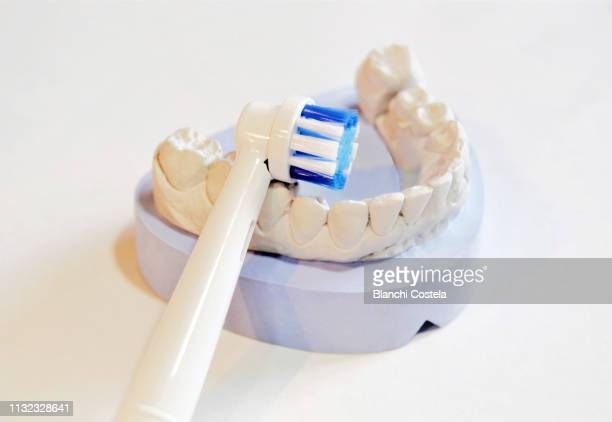 60 Top Dental Mould Pictures, Photos and Images - Getty Images