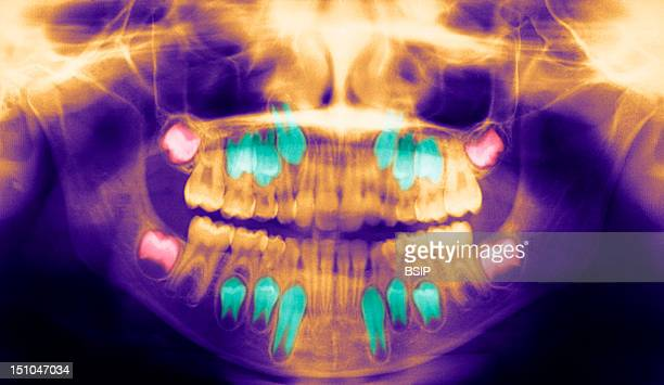 Dental Panoramic X Ray In Red The Wisdom Teeth In Turquoise The Permanent Teeth Growing Below The Baby Teeth
