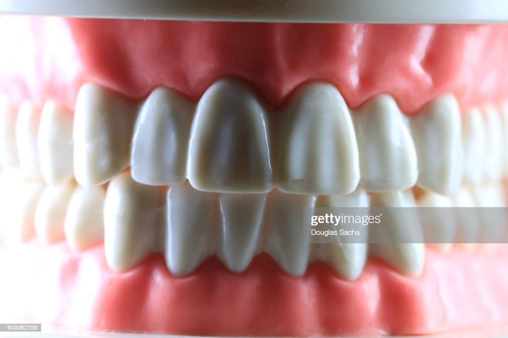 Dental Plaster Cast Of Human Teeth And Gums Stock Photo Getty Images