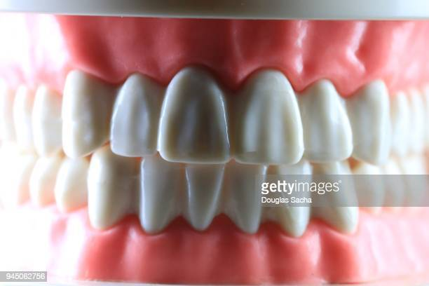 Dental Plaster cast of human teeth and gums