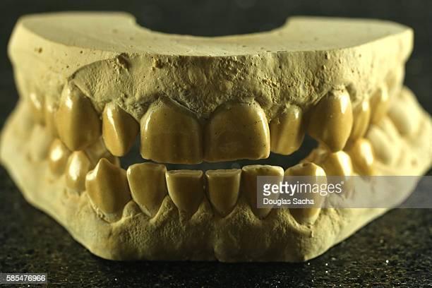 Dental Plaster cast of human teeth
