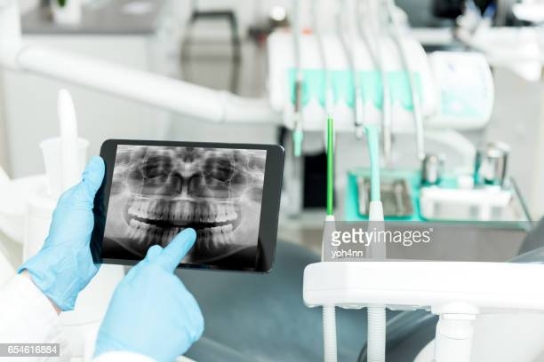 dental radiogram on tablet - dental equipment stock pictures, royalty-free photos & images